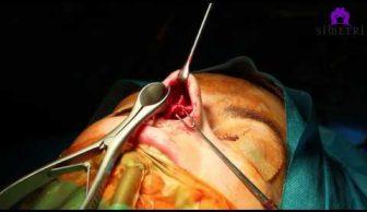 Burun Kıkırdak ameliyatı nasıl yapılır