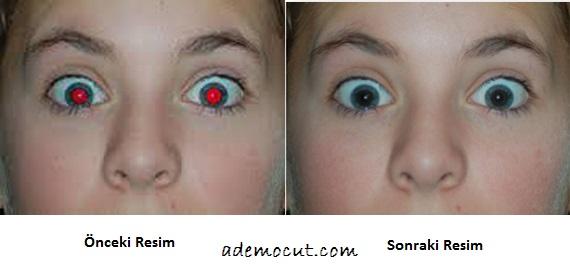 kırmızı göz düzeltme